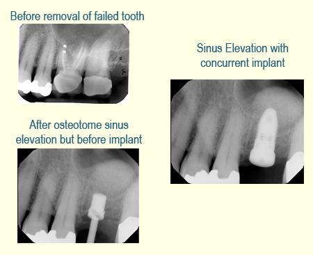 Belmont Periodontics Sinus Elevation